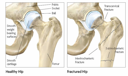 Patient Care After Hip Fracture Why Is A Healthy Hip Important